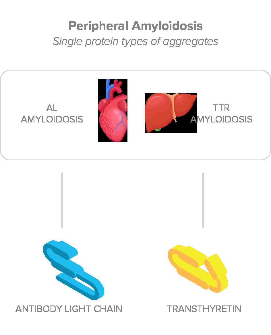Peripheral Amyloidosis